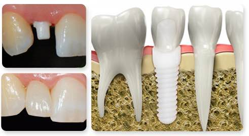 dental-implants-ceraroot-ceramic-zirconia