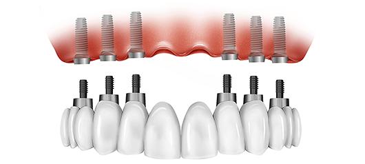 all-on-6-bio-implant-center-tijuana