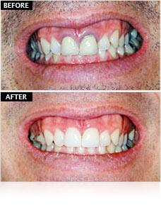 ceraroot-implants-bio-implant-center-tijuana