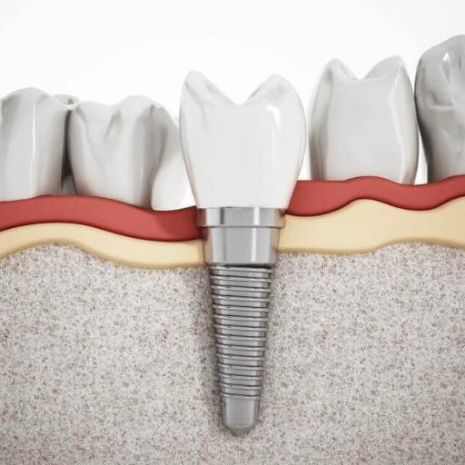 cheap-dental-implants