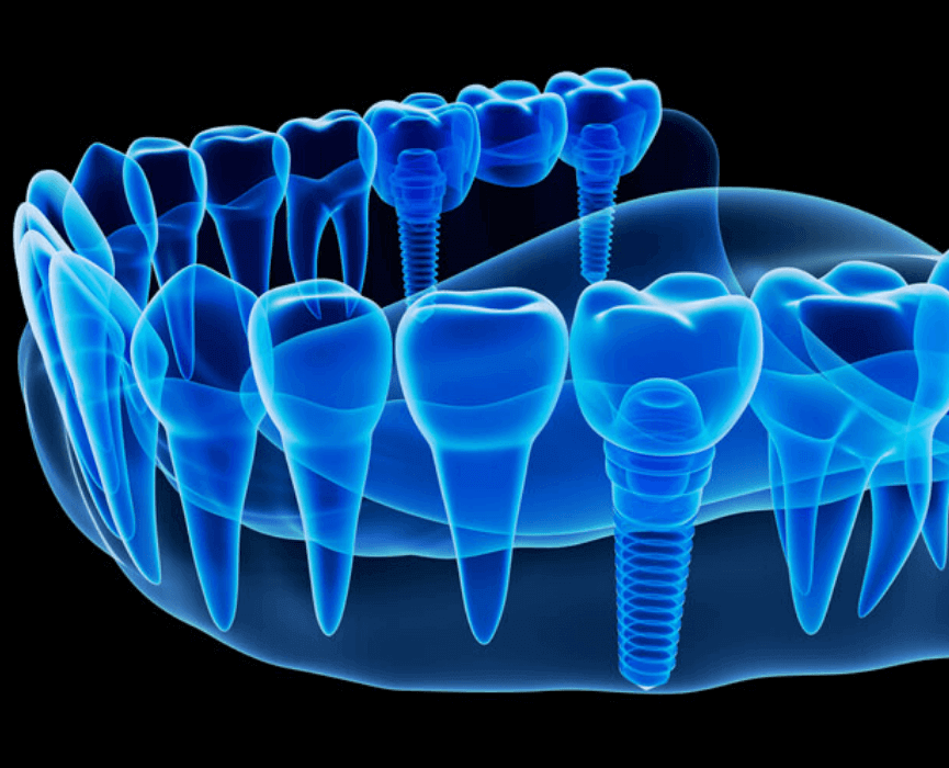 dental-implants-in-mexico