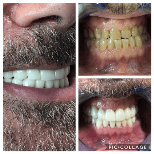 cosmetic-dentistry-mexico