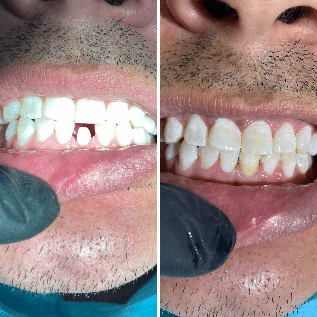 dental-implants-mexico