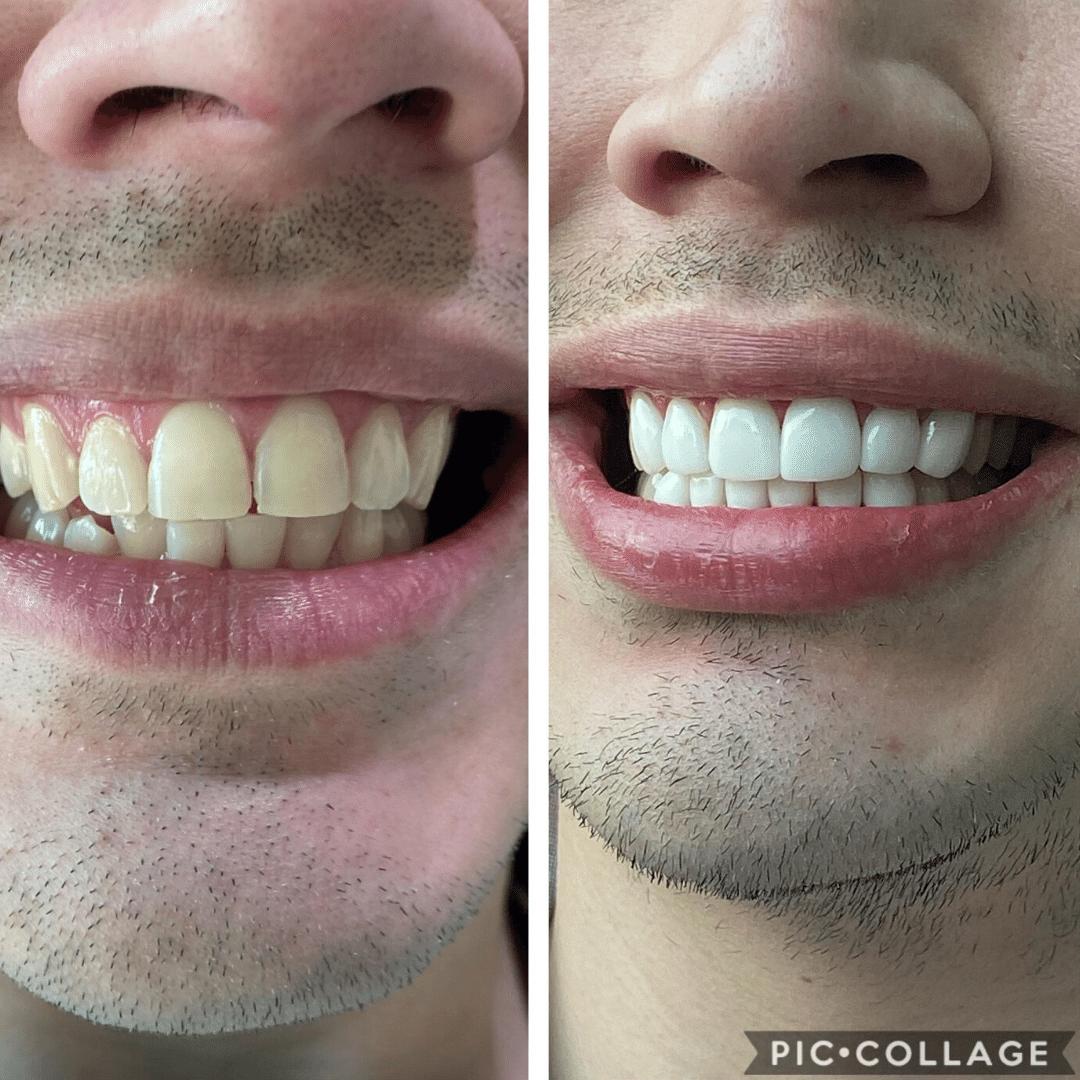 patient-dental-veneers