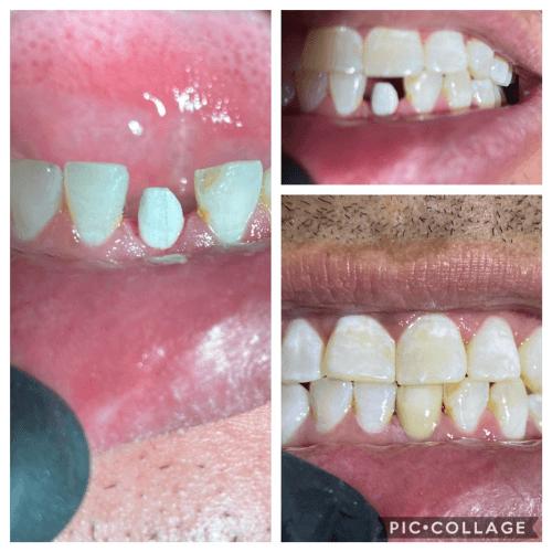 dental-assistant
