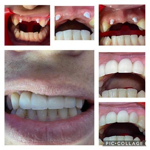 zirconia-dental-implant-bridge