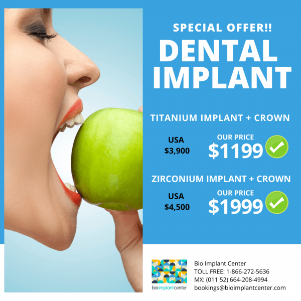 dental-implants-tijuana-special-offer